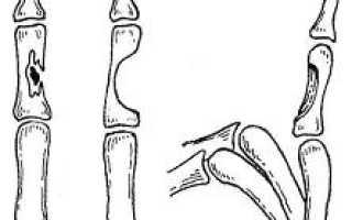Остеомиелит пальца руки как лечить