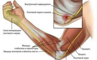 Тендинит локтевого сустава: причины, симптомы, основные методы лечения – лечение
