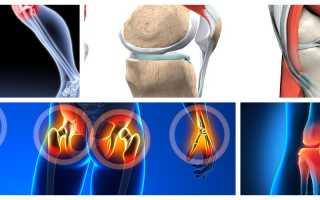 Какие продукты вредны для суставов, вредная еда для суставов и связок