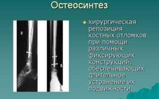 Остеосинтез шейки бедра канюлированными винтами преимущества и недостатки метода выполнение операции и возможные последствия