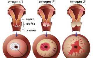Прививка от рака шейки матки. Польза или вред? Как предотвратить рак молочной железы методы