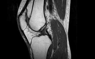 Что лучше МРТ или КТ коленного сустава при болях в коленях.