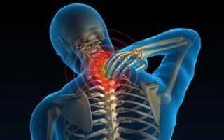 Как расслабить шею при остеохондрозе