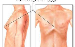Лечение деформации грудной клетки у подростков и детей лфк упражнения массаж гимнастика