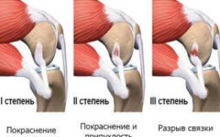 Острая боль в коленном суставе – настигает внезапно лечится с трудом
