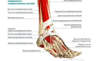 Тендовагинит: причины, симптомы, варианты лечения, профилактика