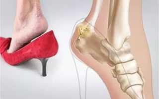 Саркома пяточной кости симптомы