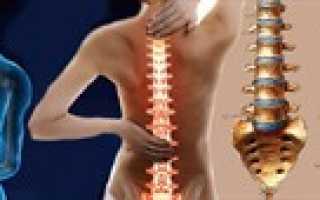 Можно ли вылечить шейный остеохондроз полностью