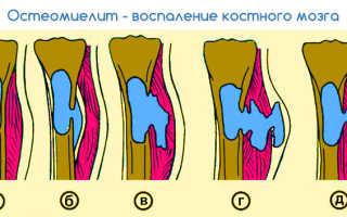 Остеомиелит пальца симптомы и лечение
