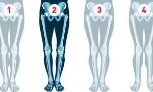 Как исправить кривизну ног ниже колена и выпрямить коленный сустав