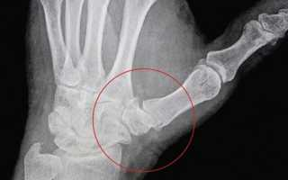 Артроз большого пальца руки лечение медикаментами и физиотерапия
