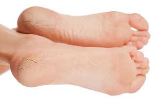 Почему лопаются пятки на ногах причины и лечение в домашних условиях