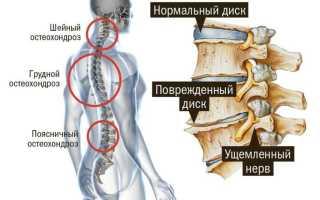 Какие упражнения делать при остеохондрозе грудного отдела