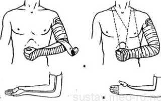 Эффективные упражнения для восстановления локтевого сустава после перелома. Как разрабатывать руку после перелома локтевого сустава
