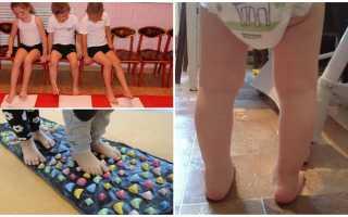 Упражнения для лечения косолапия у детей