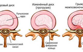 Укрепление мышц спины при грыже