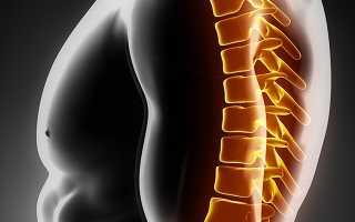 Жгучая боль в позвоночнике грудного отдела