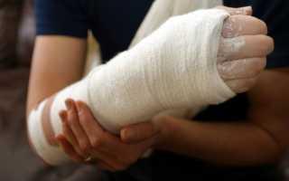 Как правильно принимать мумие при переломах костей