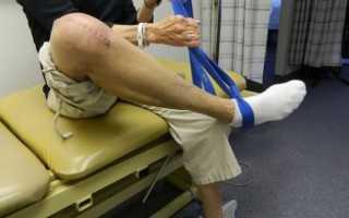 Замена коленного сустава реабилитация после операции