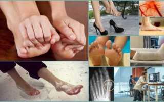 Онемение ног при сахарном диабете и как это лечить
