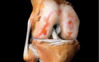 Упражнения при артрите коленного сустава: лечебная физкультура и гимнастика