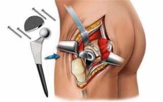 Что надо знать о протезировании тазобедренного сустава