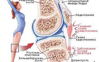 Тендинит коленного сустава симптомы и лечение