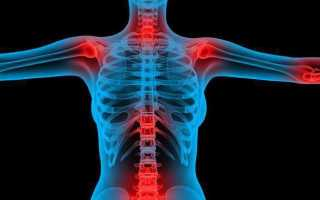 Что такое теносиновит и как его лечить