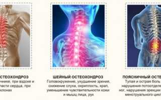Можно ли париться в бане при остеохондрозе шейного, грудного, поясничного отдела