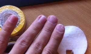 Средства от дрожжевого грибка ногтей и его профилактика