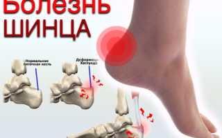 Остеохондропатия пяточной кости рентген