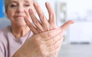 Отек пальцев рук причины лечение диагностика профилактика