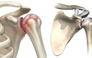 Остеохондроз плечевого сустава симптомы и лечение