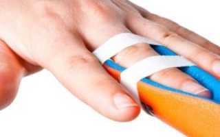 Вывих пальца на руке как проявляется Лечение и реабилитация