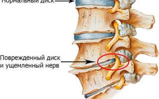 Полисегментарный остеохондроз шейного отдела