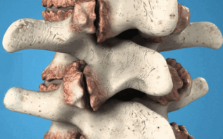 Смежные краевые остеофиты тел позвонков