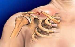 В каком положении надо транспортировать пострадавшего с переломом ключицы