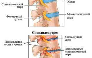 Лфк при спондилоартрозе шейного отдела позвоночника