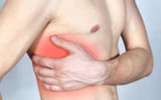 Приступ межреберной невралгии симптомы