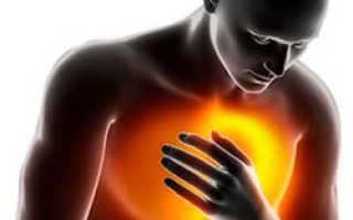 Симптомы ущемления пупочной грыжи у взрослых