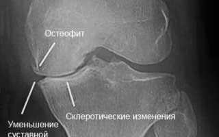 Лечение заострения межмыщелковых возвышений коленного сустава. Суставная щель коленного сустава