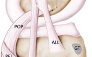 Растяжение связок коленного сустава: лечение, симптомы, сколько заживает