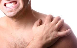 Перихондрит грудино ключичного сочленения