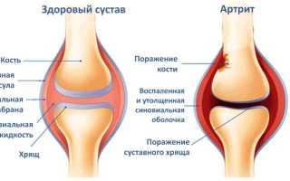 Лечение артрита коленного сустава дома наиболее действенные методы