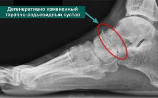 Как лечить деформирующий артроз стопы