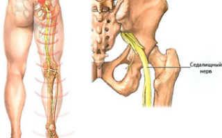 Как лечить ишиас седалищного нерва