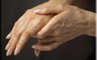 Лечение ревматоидного полиартрита всех суставов