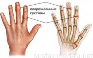 Повреждение капсулы сустава пальца руки