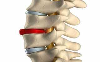 Почему болит спина при беременности? Причины и диагностика боли в спине при беременности. Что делать