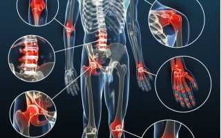 Препарат Сустапрайм эффективный крем от боли в суставах